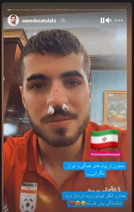 سعید عزتاللهی از شکستگی بینیاش خبر داد