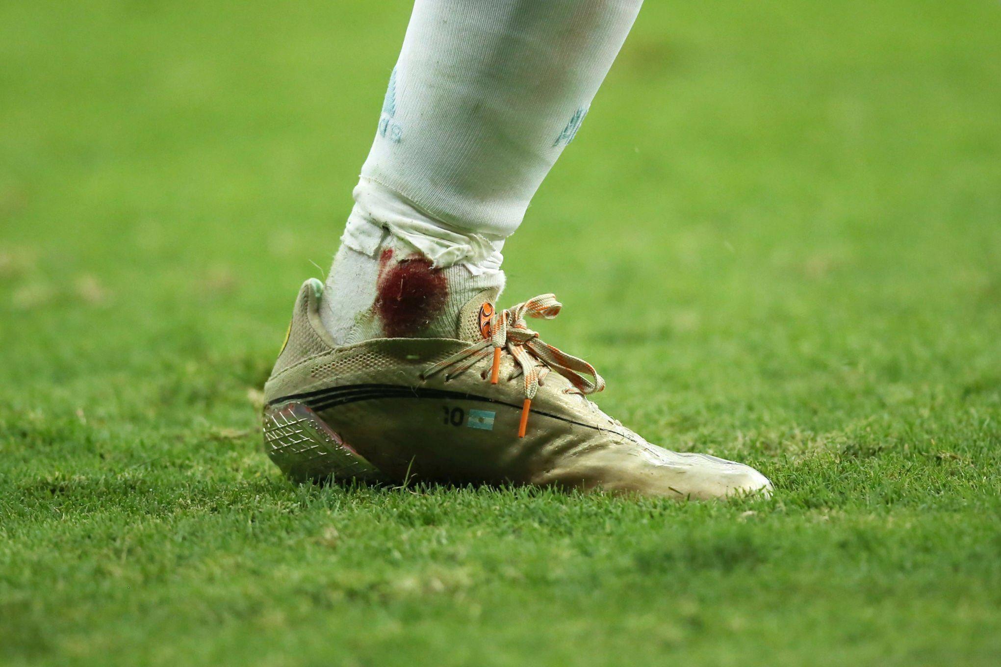 پای زخمی مسی