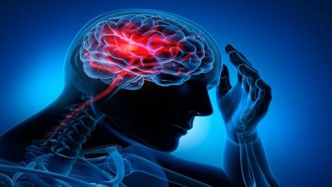 کرونا در جوانان باعث سکته مغزی می شود؟