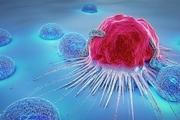سونامی سرطانهای پیشرفته زنان به دلیل کرونا