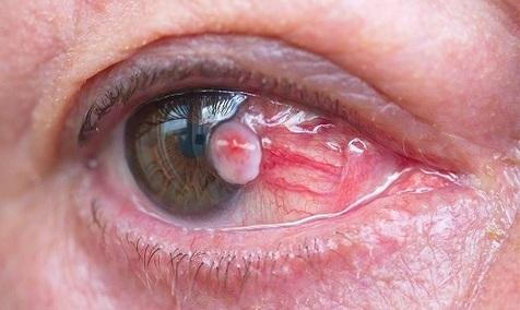 علائم ابتلا به سرطان چشم را بشناسید