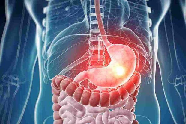 سرطان معده، شایع ترین بیماری سرطانی مردان در استان اردبیل است