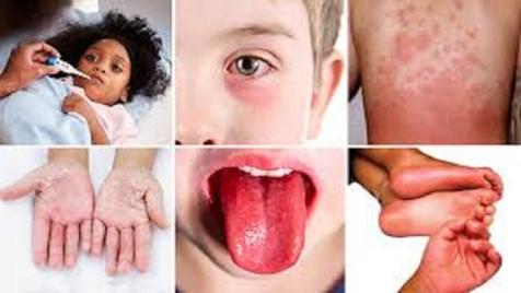 وحشتناک ترین علامت ابتلا به کرونا در کودکان و بزرگسالان+ تصاویر