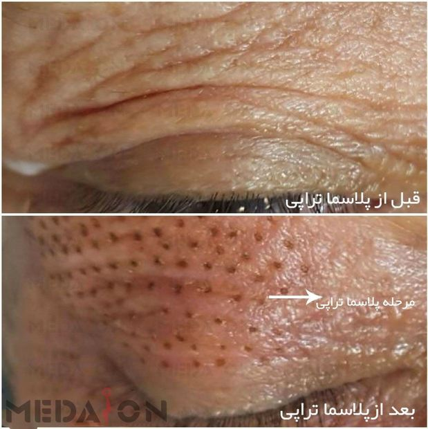 بلفاروپلاستی بدون جراحی (درمان افتادگی پلک)