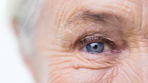 5 راهکار مراقبت از اطراف چشم