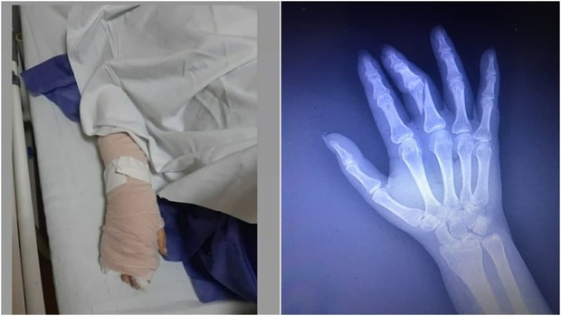مامور حراست بیمارستان انگشتان دست خانم خبرنگار را شکست + عکس