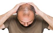 ریزش مو تا دو ماه پس از بهبودی ویروس کرونا