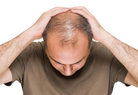نشانه هایی که خبر از ریزش مو می دهد +روش درمان