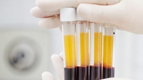 شرایط لازم برای اهدای پلاکت مستقیم خون