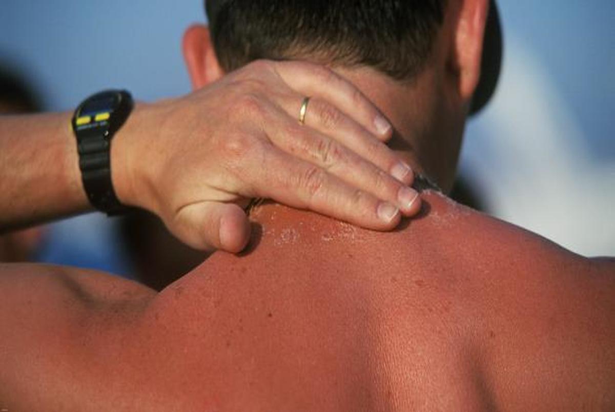 کارهایی که پس از ابتلا به آفتاب سوختگی نباید انجام داد