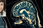 تشخیص ابتلا به آلزایمر چند دهه زودتر  با یافته های دانشمندان ایرانی