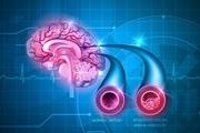تشخیص سکته های مخفی با آزمایش خون