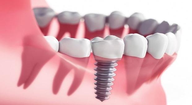 چطور دندان های زیبا و سالمی داشته باشیم؟