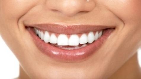 لک های دندان از این عوامل ناشی می شوند