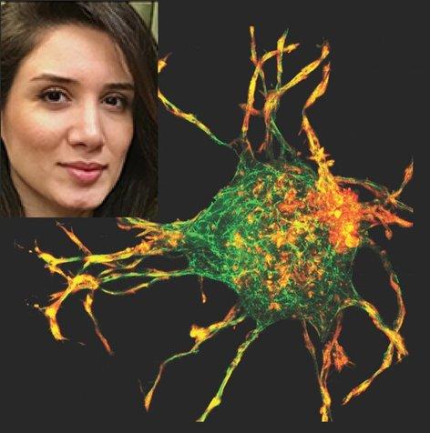 دانشمند زن ایرانی از راز ترمیم زخم پرده برداشت!
