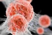 آیا کیستهای مثانه سرطان محسوب میشوند؟