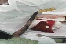 نجات جان دختربچه ۹ ساله لردگانی در اتاق عمل بیمارستان شهدا لردگان