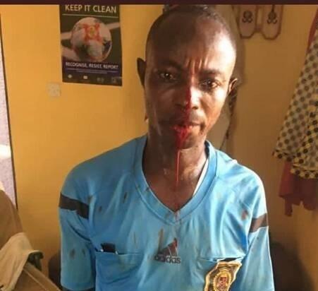 اتفاق عجیب در لیگ غنا؛ حمله شدید تماشاگران به داور+ عکس