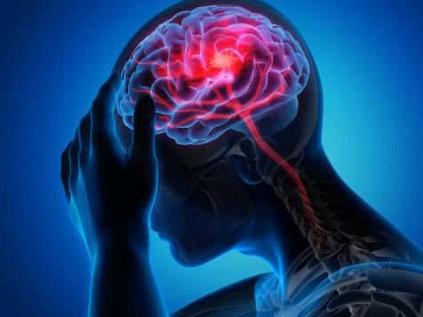 ردیابی سکته مغزی با کمک یک اپلیکیشن